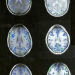 Εγκέφαλοι1