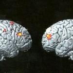 Εγκέφαλοι