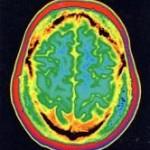 Νευρογένεση-αντιγήρανση