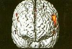 Ψυχική-πίεση
