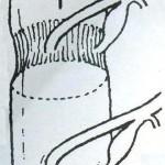 Η-αυχενική-μυελοπάθεια-της-μέσης-ηλικίας