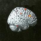 Νευρολογία-και-ομοιόσταση