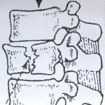 Σιωπηλά-κατάγματα-σπονδυλικής-στήλης
