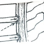 Σπονδυλική-στήλη-και-μυελοπάθεια