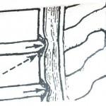 Στένωση-σπονδυλικού-σωλήνα