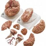 Αγγεία εγκεφάλου.jpg