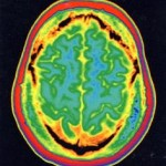 Εγκέφαλος13