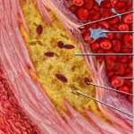 Αρτηριοσκλήρωση