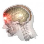 traumatic_brain_injury
