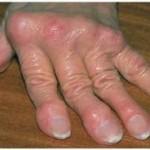 Ουρική αρθρίτιδα