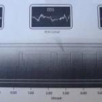 Το-εγκεφαλικό-«παράδοξο»-του-ύπνου-300x153