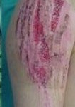 Τραυματισμός δέρματος