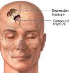 Kρανιοεγκεφαλικές κακώσεις