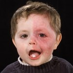 sturge-weber_syndrome