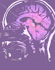 Υποξαιμική εγκεφαλοπάθεια
