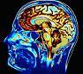 Εγκεφαλική ουσία