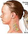 Νωτιαίος μυελός