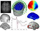 MRI_EEG