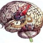 Το παιχνίδι μεταξύ εγκεφαλικού ανευρύσματος και ισχαιμίας