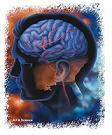 Εγκεφαλικά εμφρακτά