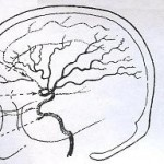 artirioflebodeis-dysplasies-epiliptikes-kriseis